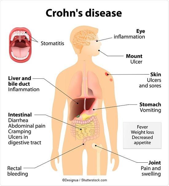 enfermedad de crohn sintomas