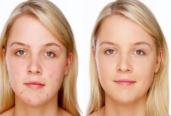 dieta keto acné
