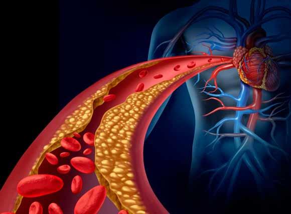 el-colesterol-sistema-fitnatura