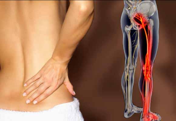 que-es-ciatica-sistema-fitnatura